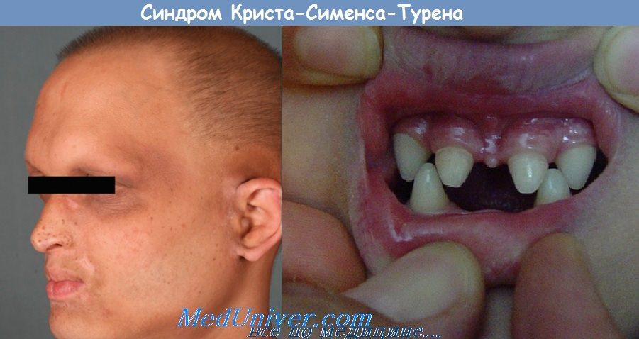 гиподентия при синдроме Криста-Сименса-Турена