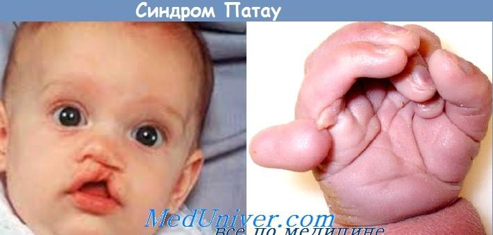 Синдром Патау (трисомия 13-й хромосомы)
