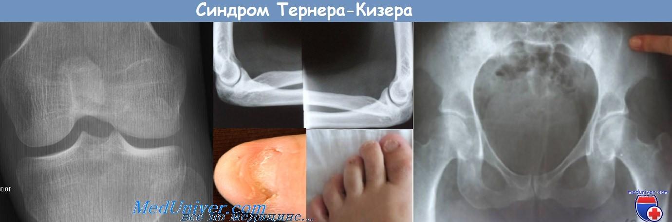 Синдром Тернера-Кизера - синдром ногтя и коленной чашечки