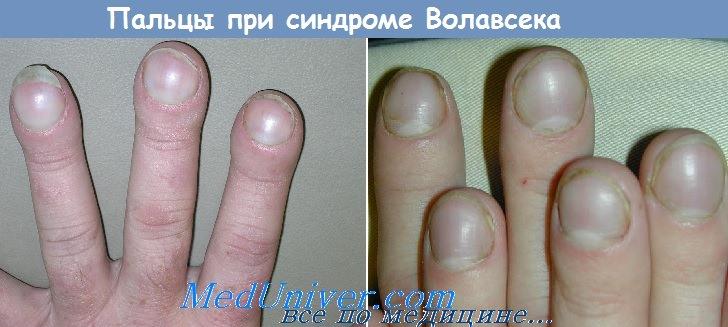 Пальцы по типу барабанных палочек при синдроме Волавсека