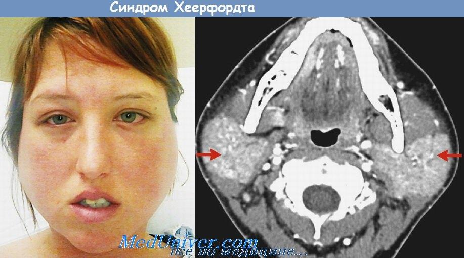 Синдром Хеерфордта - увеопаротит при саркоидозе