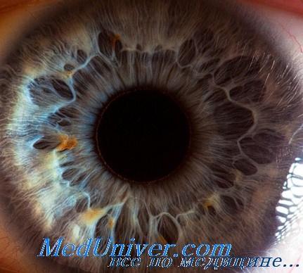 влияние йода на радужную оболочку глаза