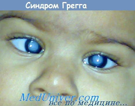 синдром Грегга при врожденной краснухе