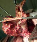 низкодифференцированный рак верхней доли