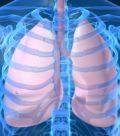 лучевая диагностика органов грудной клетки