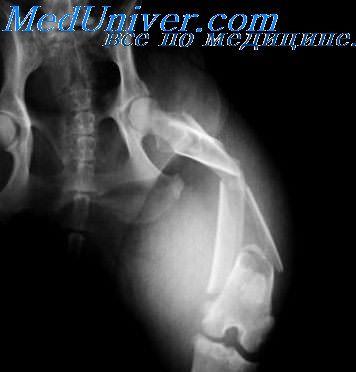 огнестрельный перелом кости