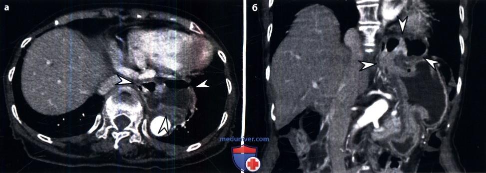 КТ, МРТ при грыже (внутрибрюшной, брюшной стенки, тазовой, паховой, диафрагмальной)