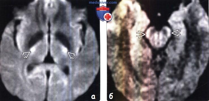 Боковой амиотрофический склероз на мрт thumbnail