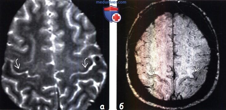Боковой амиотрофический склероз на МРТ головного мозга