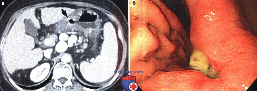 Рентгенограмма, КТ при язве желудка и двенадцатиперстной кишки
