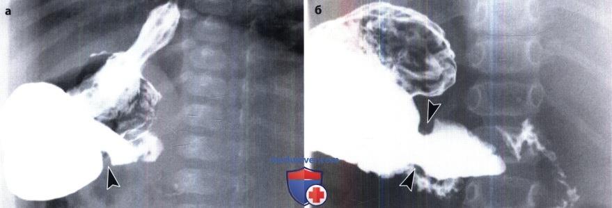 Рентгенограмма при мембране антрального отдела желудка (препилорической мембране, слизистой диафрагме)