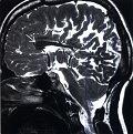 Дисгенезия мозолистого тела на МРТ