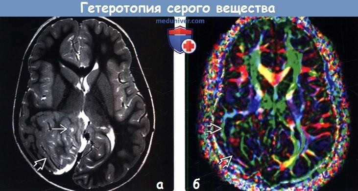 Узловая гетеротопия мозга