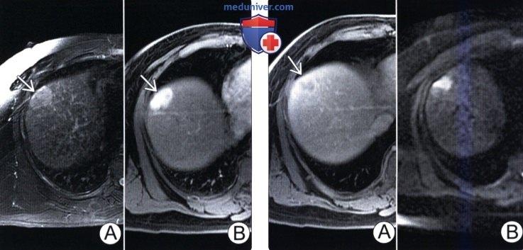 КТ, МРТ, УЗИ признаки гепатоцеллюлярного рака печени