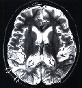 MELAS на МРТ головного мозга