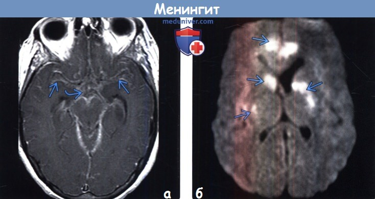 Мрт головного мозга при менингите thumbnail