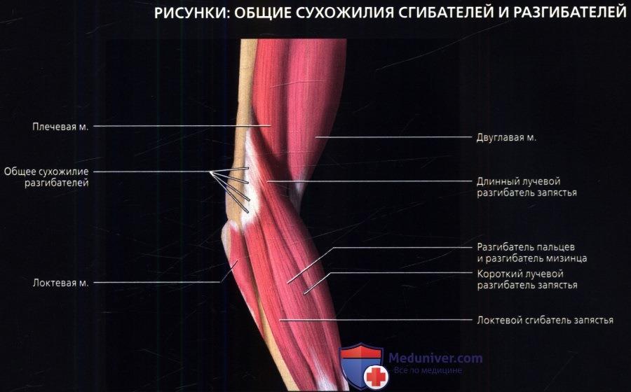 Что такое разгибательные мышцы локтевого сустава фото