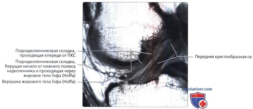 Мрт разрыва передней крестообразной связки thumbnail