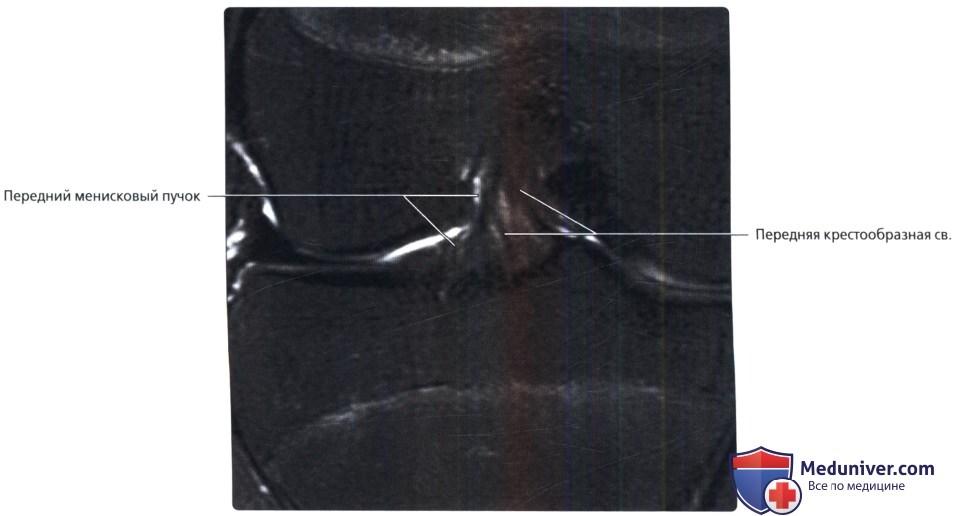 МРТ крестообразных связок коленного сустава в норме