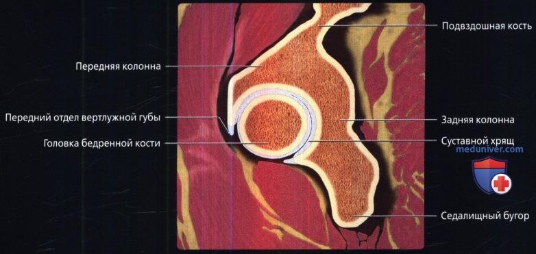 МРТ тазобедренного сустава в аксиальной проекции в норме
