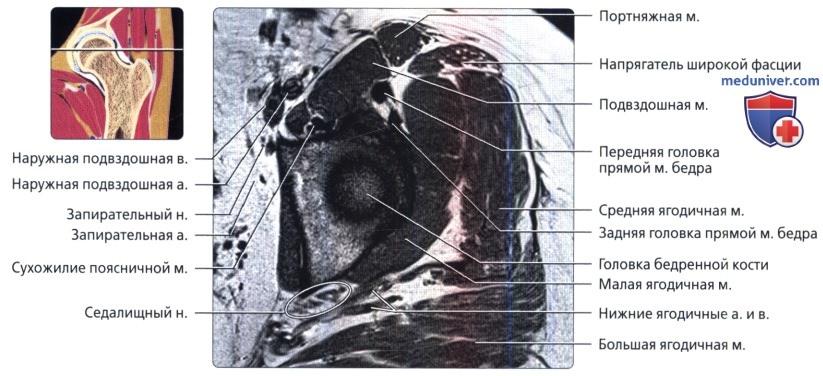 Сумки тазобедренного сустава мрт анатомия thumbnail