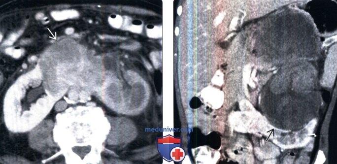 Подковообразная почка рентген 16