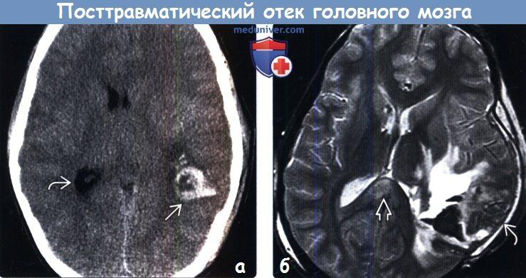 Посттравматический отек головного мозга на КТ, МРТ