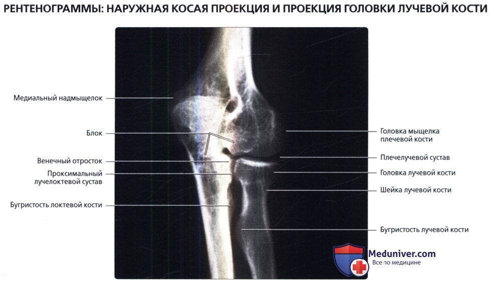 Рентгенограмма локтевого сустава в норме