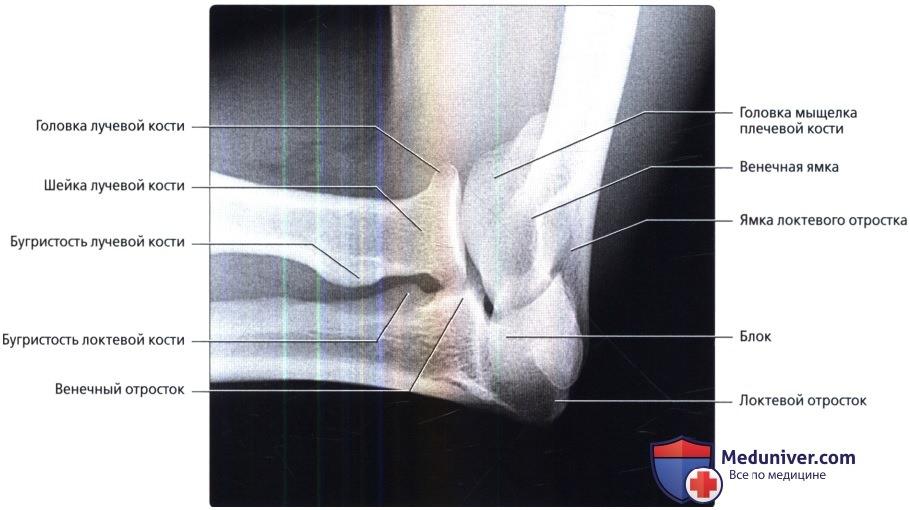 Рентген локтевого сустава у детей норма thumbnail