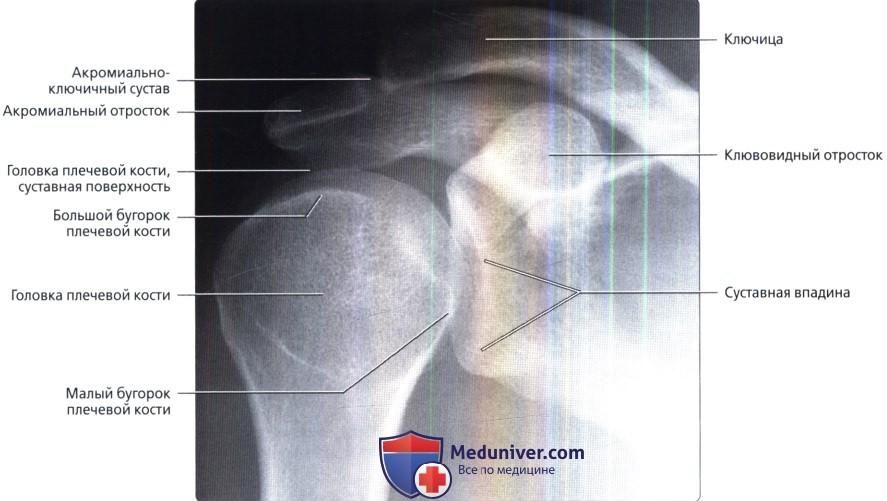 Рентгенограмма плечевого сустава в норме