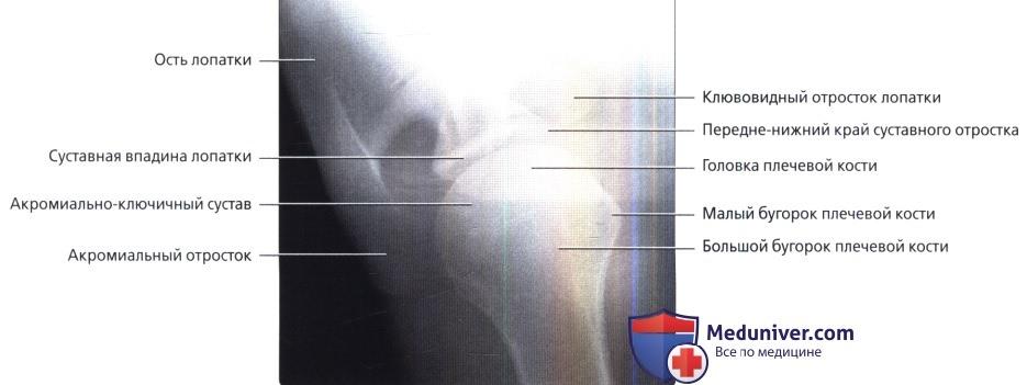 Рентген правого плечевого сустава фото thumbnail