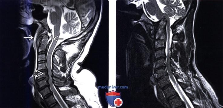 Ревматоидный артрит позвонка с 2 thumbnail