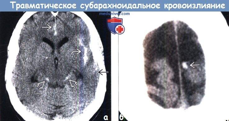 Субарахноидальное кровоизлияние после травмы на КТ