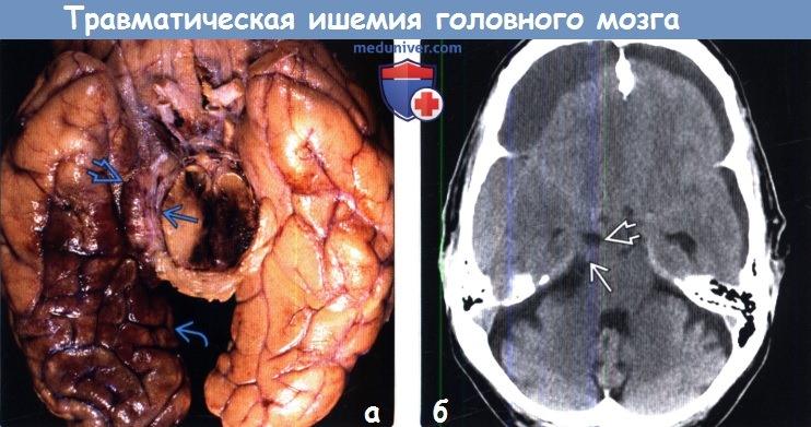 Хроническая ишемия головного мозга: причины, симптомы и ...