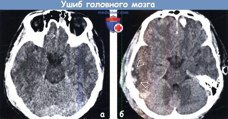 Ушиб головного мозга на КТ