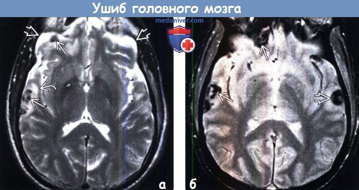 Ушиб головного мозга на МРТ
