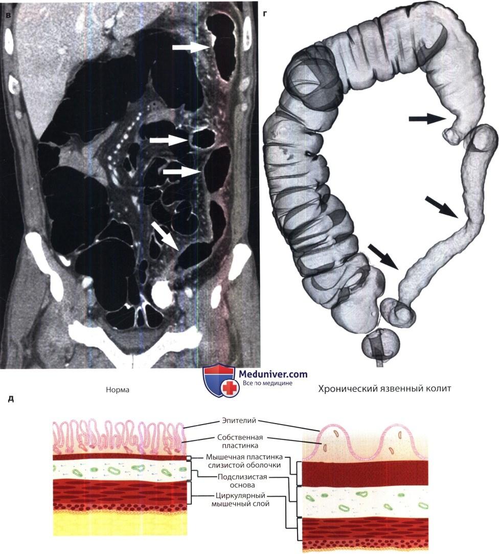Рентгенограмма, КТ при язвенном колите