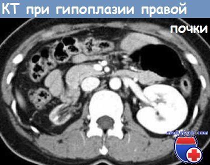 Гипоплазия почек - причины, диагностика