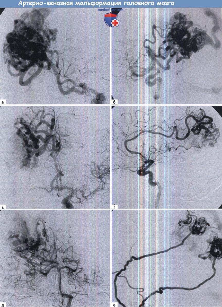 Артерио-венозная мальформация сосудов головного мозга