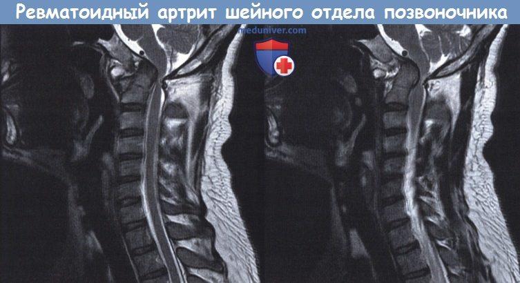 Что такое артрит шейного отдела позвоночника фото