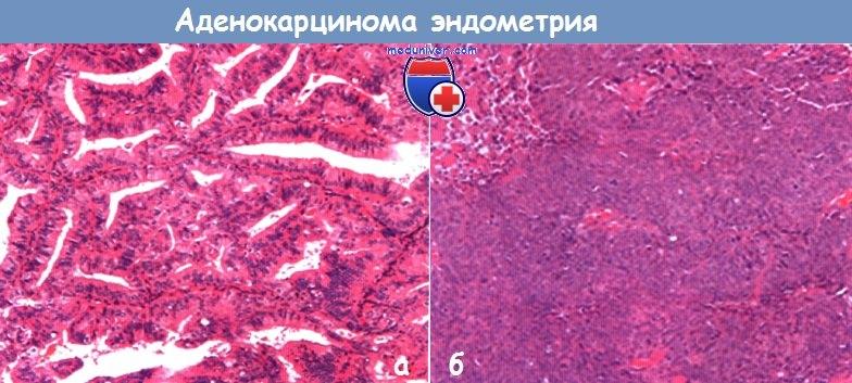 Эндометриоидная аденокарцинома с плоскоклеточной дифференцировкой 6