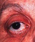 Болезнь Кимуры глазницы