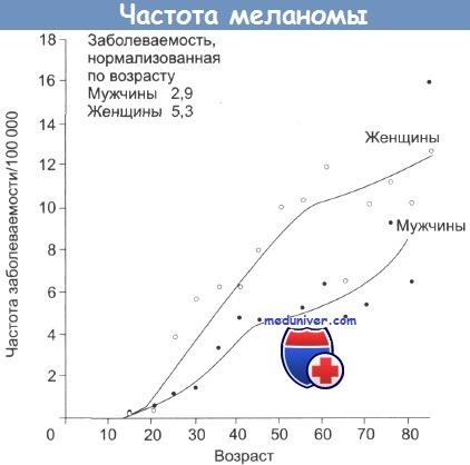 Эпидемиология меланомы кожи