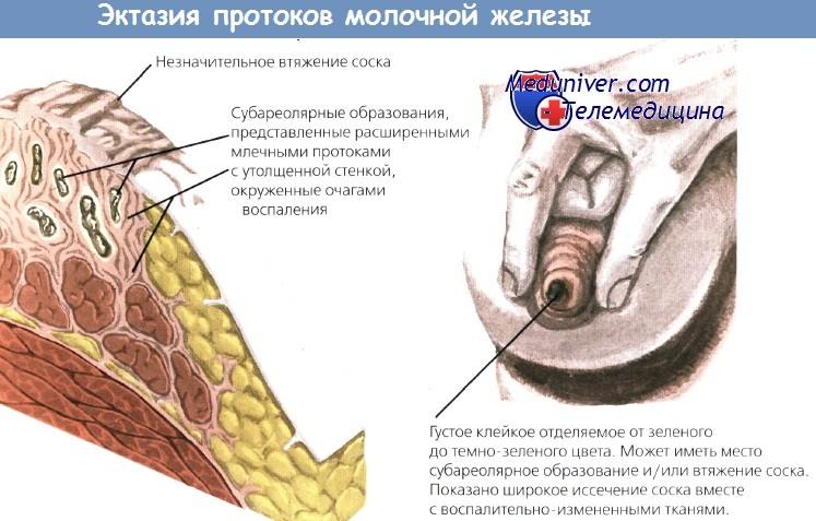 Зуд в соске при эктазии молочной железы