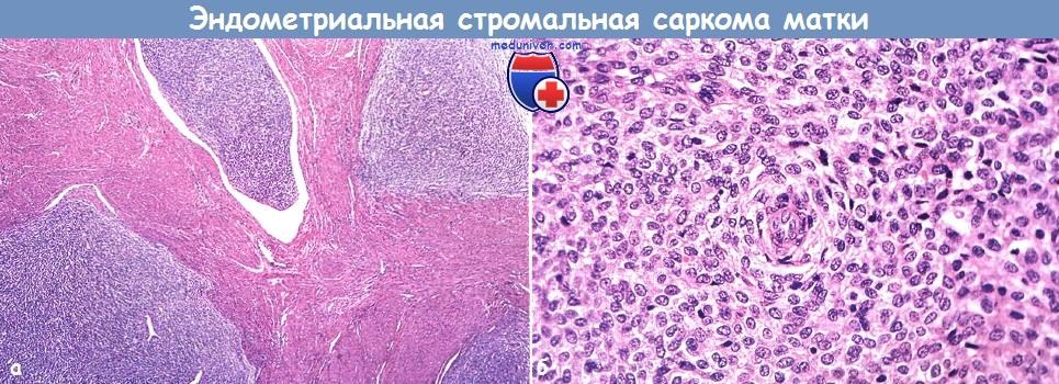 Стромальная саркома эндометрия матки