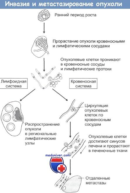 Инвазия и метастазирование опухоли