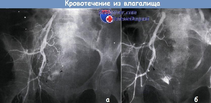 Кровотечение из рака шейки thumbnail