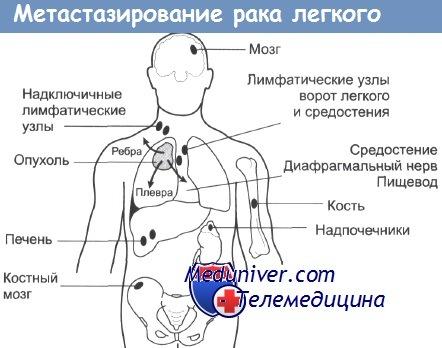 Метастазирование рака легкого