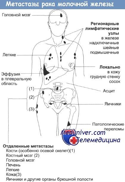 рак метастаз