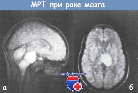 МРТ при раке мозга